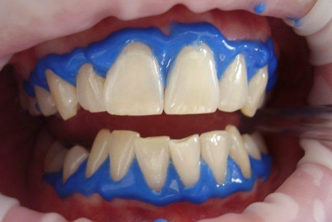 הלבנת שיניים: מחלום למציאות